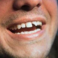 Fix My Teeth Near Me