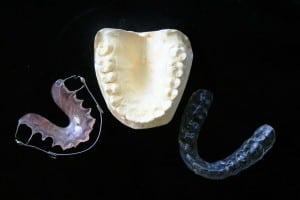 teeth straightening options