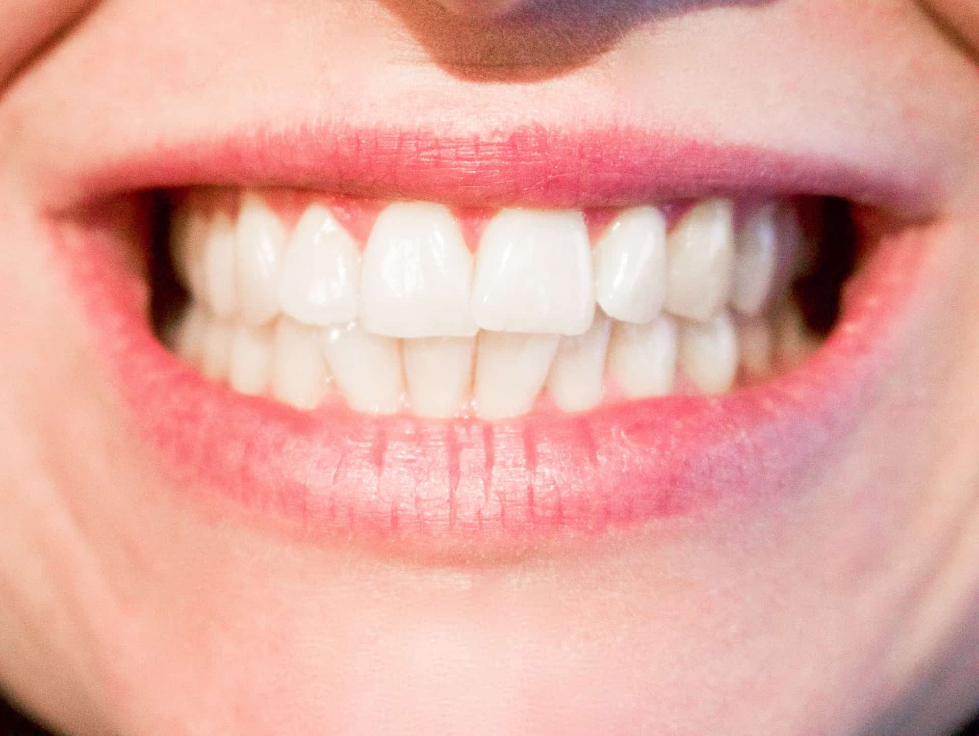 How to Know If You Need Your Wisdom Teeth Removed | Merion Dental
